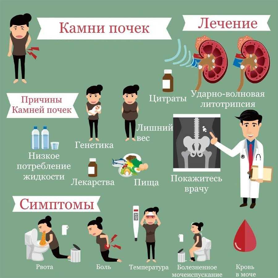 Как вылечить мочекаменную болезнь?