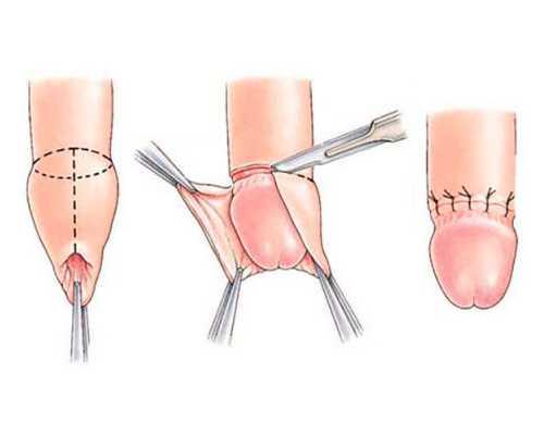 Операция обрезание крайней плоти