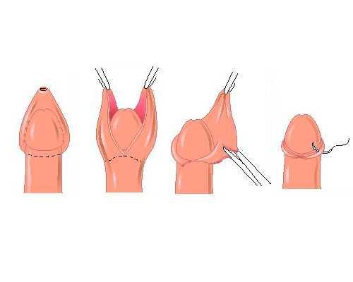 Операция по обрезанию крайней плоти у мужчин