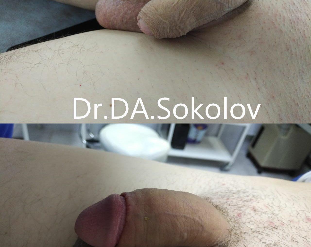 Обрезание крайней плоти для продления полового акта